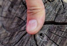 Delat spika på tummen Utvidgning av spika, traumatisk patologi Spika delas i halva royaltyfria foton