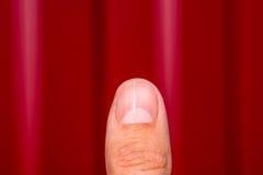 Delat spika på tummen Utvidgning av spika, traumatisk patologi Spika delas i halva arkivfoton