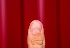 Delat spika på tummen Utvidgning av spika, traumatisk patologi Spika delas i halva royaltyfria bilder