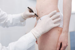 Delicate excellent specialist marking the guidelines for surgery Royalty Free Stock Image