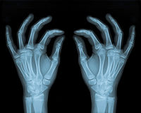 Delicate Hands. Hand X- Ray Of a Normal Young Person Stock Images