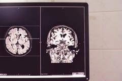 Demência do cérebro de MRI imagens de stock royalty free