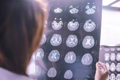 Demência do cérebro de MRI Imagem de Stock