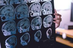 Demência do cérebro de MRI fotografia de stock