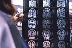 Demência do cérebro de MRI Imagem de Stock Royalty Free
