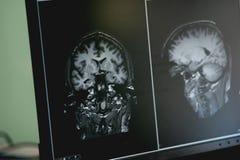 Demência no filme de MRI demência do cérebro imagens de stock