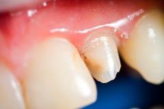 Demande de règlement dentaire Photos libres de droits