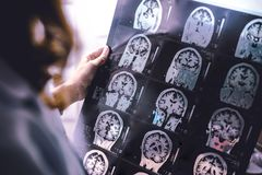 Demencia del cerebro de MRI foto de archivo libre de regalías