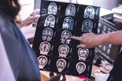 Demencia del cerebro de MRI imagen de archivo