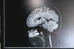 Demencia en la película de MRI demencia del cerebro Fotos de archivo libres de regalías