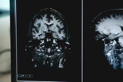 Demencia en la película de MRI demencia del cerebro Foto de archivo libre de regalías