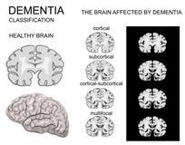 Demens Alzheimers sjukdom royaltyfri illustrationer