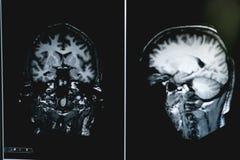 Demens på MRI-filmen hjärndemens royaltyfria bilder