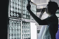 Demenshjärna på MRI royaltyfri bild