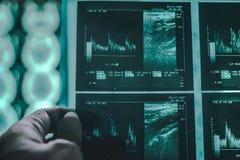 Demenshjärna på MRI arkivbilder