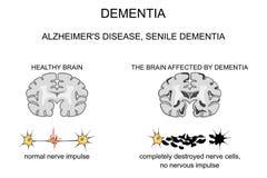 Dementia, Alzheimer s disease. pathogenesis Stock Image