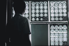 Dementia brain on MRI. This MRI film indicated to brain atrophy was diagnostic to be Dementia Stock Photography