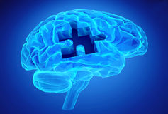 Dementia disease and a loss of brain function and memories Royalty Free Stock Images