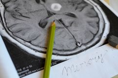 A picture of a stroke. Dementia illness and disease as a loss of brain function and memories. Dementia illness and disease as a loss of brain function and stock photo