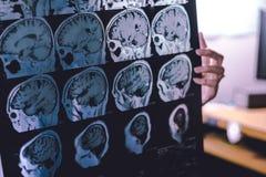 Demenza del cervello di RMI Fotografia Stock