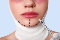 Demi portrait de visage de jeune femme avec des flèches sur le menton contre le mur bleu Injection recived par femme pour augment photographie stock libre de droits