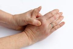 Den äldre kvinnan har att smärta i hans händer royaltyfri foto