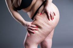 Den överviktiga kvinnan med feta lår, fetmakvinnlig lägger benen på ryggen fotografering för bildbyråer