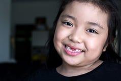 Den asiatiska flickan som ler den brutna tanden Arkivfoto