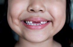 Den asiatiska flickan som ler den brutna tanden Fotografering för Bildbyråer