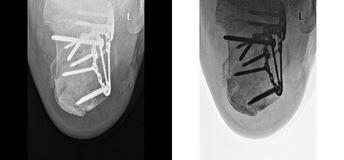 Den brutna hälröntgenstrålen som fixas med skruvar och plattan, fot smärtar på doktorskontoret Royaltyfria Foton