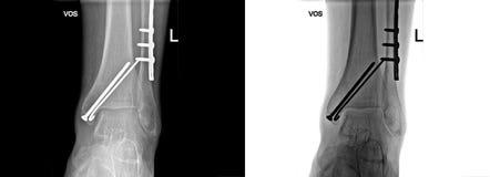 Den brutna hälröntgenstrålen som fixas med skruvar och plattan, fot smärtar på doktorskontoret Arkivbild