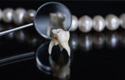 Den dåliga ruttna tanden drog och ställningar mitt emot kontoren av Royaltyfria Foton