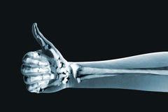 Den dramatiserade x-strålen av en hand tumm upp Royaltyfria Bilder