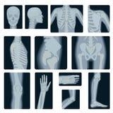 Den extrema kvalitets- realistiska vektorcollageuppsättningen av många röntgar skott Åtskillig del för röntgenstråle av vuxet fol Arkivfoton