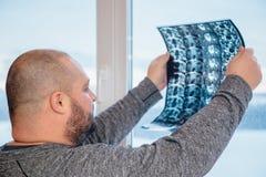 Den feta mannen undersöker resultat av kopiering för magnetisk resonans MRI av hans höftled Selektivt fokusera royaltyfria bilder