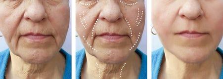 Den gamla kvinnan rynkar att lyfta för behandlingar för skillnad för borttagning för korrigeringskirurgföryngring före och efter royaltyfria bilder