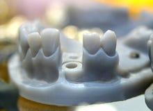 Den hopfällbara käkemodellen med tänder och hål för implantatet krönar stödet som skrivs ut på en skrivare 3d Arkivbild