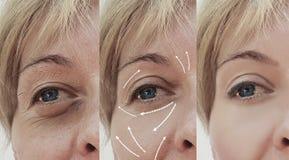 Den kvinnliga vuxna ansiktsbehandlingen rynkar tillvägagångssätt för skillnaden för föryngringbehandling mogna tålmodiga kosmetis arkivbild