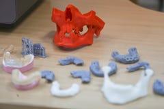 Den lägre käken av en man som skapas på en skrivare 3d från ett photopolymermaterial Skrivare för Stereolithography 3D, teknologi Arkivbilder