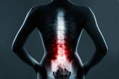 Den lumbala ryggen markeras av röd färg arkivbilder