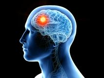 den mänskliga hjärnan och en tumör royaltyfri illustrationer