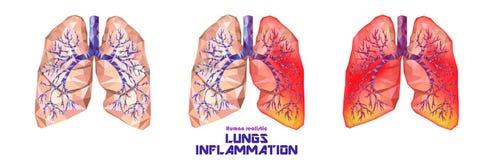 Den mänskliga lungor och luftstrupen ställde in i lågt poly Sunt en lunga dåligt, royaltyfri illustrationer
