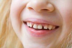 Den nära övre munnen av att le behandla som ett barn flickan med mjölkar tänder och hennes första kindtandtänder Hälsovård, tand- arkivbilder