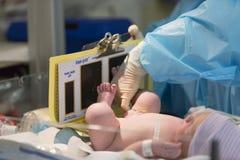 Den nyfödda mannen behandla som ett barn ha fotspåret att göras Arkivbild