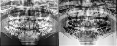 Den panorama- tand- röntgenstrålen av ett barn som är lövfällande - mjölka tänder som växer från käkebenet Royaltyfri Fotografi