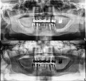 Den panorama- tand- röntgenstrålen, fasta tänder, skyddsremsan för tand- amalgam, den tand- kronan och bron som fylls rotar kanal Royaltyfri Foto
