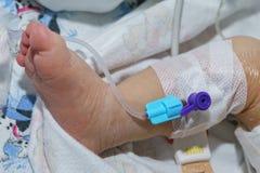 Den perifer intravenösa kateter i åder av nyfött behandla som ett barn foten Arkivbild