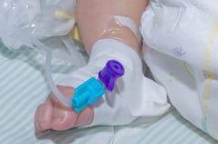 Den perifer intravenösa kateter i åder av nyfött behandla som ett barn foten arkivfoton