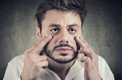 Den sjuka mannen som ser i en spegel, har gulaktiga ögon som tecken av möjlig leverinfektion eller annan sjukdom royaltyfri bild