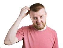 Den skäggiga mannen skrapar hans head hår Royaltyfri Bild